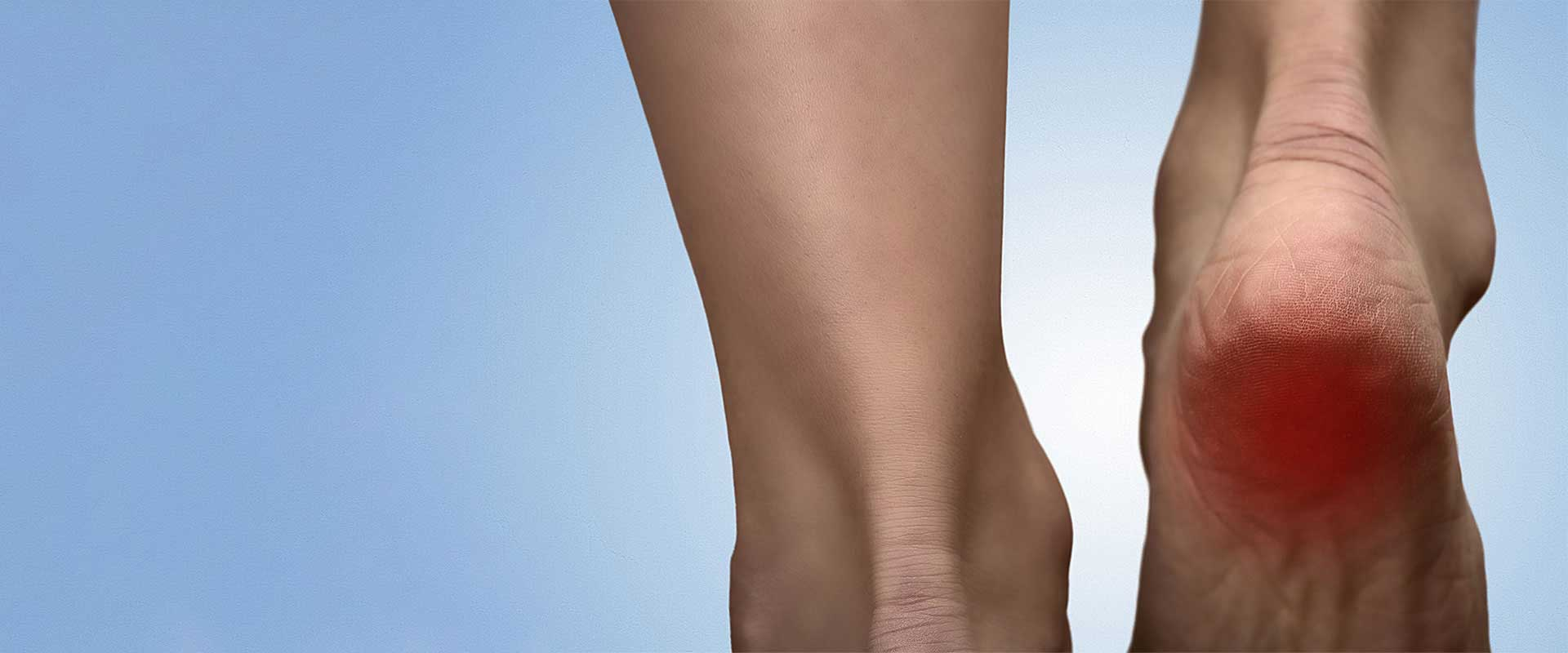 The Foot and Ankle Center heel pain